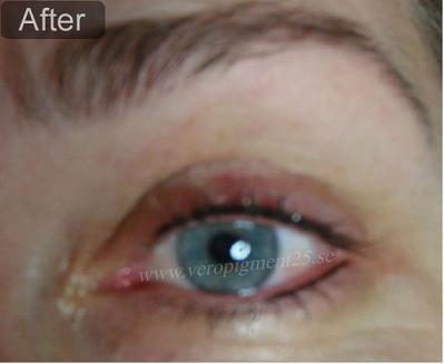 Permanent Makep of Eye Liner - After